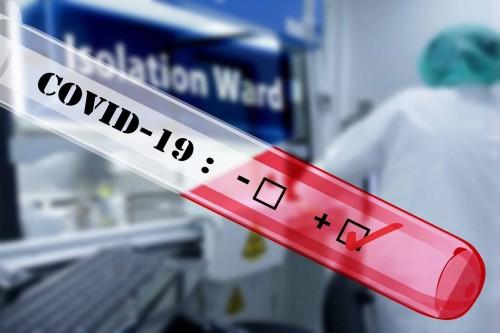 Breaking News: Hasil Rapid Tes 1 Orang Pasien di Bone Diduga Pasitif Coronavirus